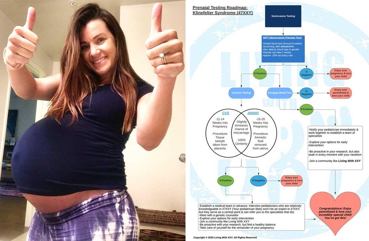Klinefelter Prenatal Testing Guide